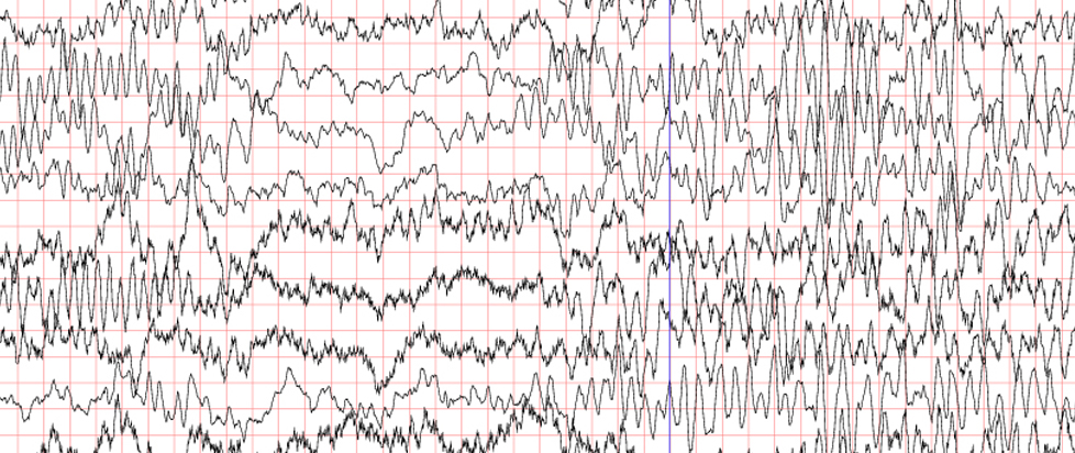 An EEG reading chart